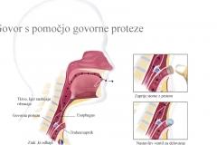 proteza